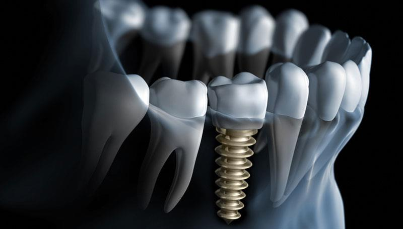 Why should I go for a Dental Implant and not a dental bridge or a denture to replace my missing teeth? Dental implants are used to replace a missing teeth without altering or trimming down neighboring teeth that would serve as anchors for a bridge, or without relying on neighboring teeth that are not strong enough to support a bridge. Even partial dentures and full dentures can be supported or retained by Dental Implants so that the function of the denture is greatly improved. The problem of a lower full denture that moves around when talking or eating can often be corrected by placing two Dental Implants in the lower jaw that hold the denture in place. Also, once Dental Implants are placed, the gradual deterioration that takes place in your jawbone where teeth are missing is slowed or eliminated. The Dental Implants have seen great success over the years because we ensure that we offer a highly aesthetic system.