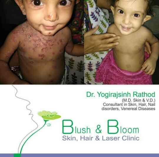 Skin Problem?  Don't be scared.....  Visit Blush& BloomSkinHairAndLaserClinic (Skin Clinic Bopal) , Bopal, Ahmedabad.