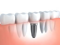 Humans are born with 2 sets of teeth i.e baby teeth and adult or permanent teeth. When a single permanent tooth or multiple teeth are lost due to dental decay or gum disease. Dental Implants can now replace them as the 3rd set of fixed teeth. Our Dental Implants can last a lifetime and  they have been known to improve your appearance, confidence, your ability to eat the foods you like and, participate in an active lifestyle without much worry about your teeth. Get rid of dental decay with our world class Dental Implants provided at our Dental Clinic.