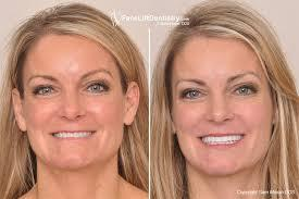 Face Lift It is the method by which skin and muscles of face and neck are lifted up surgically to give you a youthful look.  The procedure can be combined with chin, nose etc.  It is done under local anaesthesia with sedation. In case of nose surgery, we may have to put patient to deep sleep or general anaesthesia.  Best face lift surgery in delhi Best face lift surgery in green park Best face lift surgery in lajpat nagar Best face lift surgery in delhi ncr Best face lift surgery in gurgaon Best face lift surgery in hauz khas Best face lift surgery in gk 2