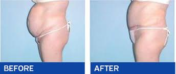 Tummy Tuck (Abdominoplasty) Abdominoplasty a cosmetic surgery procedure also known as tummy tuck this term is used for this procedure because the middle and lower abdomen is treated in this procedure for the firmness of abdomen abdominoplasty is performed. In abdominoplasty procedure the excess skin and fat from the middle and lower abdomen is removed.