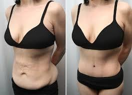 After Massive Weight Loss When a person undergoes massive weight loss through dieting or exercise or even through surgery which is called Bariatric Surgery, there is sagging of the skin and muscles as the fat which kept the skin taut has gone away. The skin which had been pulled tight over the fat enveloped body is suddenly left to go back to its original shape but has lost its elasticity and is left sagging. This happens usually on the face, neck, upper arms, breast, abdomen, buttocks or thighs.