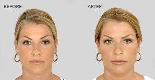 Treatment of Hollow Cheeks Hollowing of cheeks is a natural process that progresses with age and is accelerated with weight loss and other reasons such as illness and facial surgery. Getting back the volume of the cheeks is one of the ways to get a more youthful look. The thinning of the cheek pads or the fat in the cheek region is responsible for this hollow cheeked look.