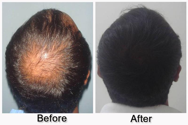 Hair transplant -Get your hair transplanted by the best cosmetic surgeon at an affordable price. 'Feel your hair grow on your hairless scalp'