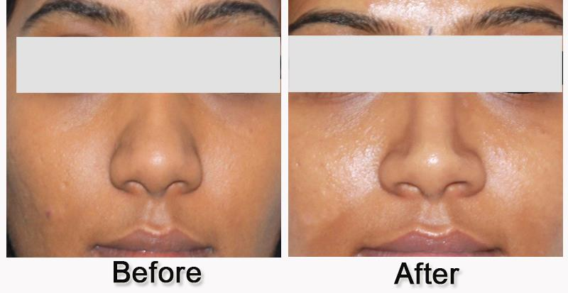 Best Cosmetic Centre for rhinoplasty in bangalore.  'Get the nose you always desired'