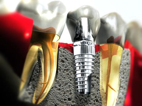 Dental Implant Cost  Miss