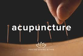Arthritic pain, back pain, knee pain, arm and hand pain, shoulder pain, sciatic pain, hip pain, foot pain, head pain, shoulder pain, neuralgia, painful stiffness, cramps, aches. STOP THE PAIN! .. don't put up with it any longer .. HAVE ACUPUNCTURE TODAY! ACUPUNCTURE FOR PAIN 1. In the US more than 3 million people used Acupuncture for PAIN last year. Arthritis, fibromyalgia, headaches, back pain, knee pain, neck pain, joint pain were the most common. 2. A Scientific University report shows Acupuncture stops PAIN. Results of a study by the University of Duisburg-Essen Germany, were presented at the annual meeting of the Radiological Society of North America. 3. More than 3.1 Million Americans including 150, 000 children had Acupuncture in the last year according to the Govt National Institute of Health.  SCIENTIFIC ACUPUNCTURE NEWS. Oxygen levels are higher at acupuncture points according research by Department of Chemistry and Nano Science, Ewha University, Seoul, Republic of Korea, reported in the publication Evidence-Based Complementary and Alternative Medicine, vol. 2012, Article ID 106762  BATTLEFIELD ACUPUNCTURE.. The Us Military is applying Acupuncture to injury stricken and stressed American soldiers in Afghanistan. The US Military is also now applying immediate Acupuncture to the main battlefield injury CONCUSSION, on site, on the battlefield. The Doctors say the results are
