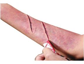 CUTS AND WOUNDS CURE BY COMPLETE, PERMANENT , EASY, SAFE , FAST & COSTEFFECTIVE PERMANENT MODERN HOMOEOPATHY .. A wound is a type of injury which happens relatively quickly in which skin is torn, cut, or punctured (an open wound), or where blunt force trauma causes a contusion (a closed wound). In pathology, it specifically refers to a sharp injury which damages the dermis of the skin. DR ARPIT CHOPRA (MD HOMOEOPATHY) Chief Consultant Homoeopath & Biochemic AAROGYA SUPERSPECIALITY MODERN HOMOEOPATHIC CLINIC(Computerised) 102, First Floor, Krishna Tower, Opposite Curewell Hospital, Newpalasia, Indore (M.P.) Mob 9713092737 /  9713037737/ 9907527914(whats up no) PH - 0731-2532737, 3961737 website- www.homoeopathycure.com