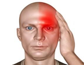 HEMICRANIA CURE BY -  COMPLETE, PERMANENT , EASY, SAFE , FAST & COSTEFFECTIVE PERMANENT MODERN HOMOEOPATHY CURE Hemicrania continua, or continuous headache, is a rare type of headache that doesn't stop. The pain is felt on one side of the face or head. It varies in severity. Patients with hemicrania continua describe a dull ache or throb that is interrupted by periods of pain that is: Jolting Sharp Stabbing These attacks usually happen three to five times a day.  Some patients will have these headaches steadily for months or years. In others, the pain will go away for weeks or months. But then it returns for extended periods.  Doctors consider a diagnosis of hemicrania continua if the pain has been present, without switching sides or disappearing even briefly, for at least three months.  The cause of hemicrania continua headaches is unknown. They affect women more often than men.  Fortunately, this condition can be treated. Patients who are able to tolerate daily anti-inflammatory medications achieve near-complete to complete relief. DR ARPIT CHOPRA (MD HOMOEOPATHY) Chief Consultant Homoeopath & Biochemic AAROGYA SUPERSPECIALITY MODERN HOMOEOPATHIC CLINIC(Computerised) 102, First Floor, Krishna Tower, Opposite Curewell Hospital, Newpalasia, Indore (M.P.) Mob 9713092737 /  9713037737/ 9907527914(whats up no) PH - 0731-2532737, 3961737 website- www.homoeopathycure.com For more info visit us at http://aarogyahomoeopathyindore.com/bizFloat/599bf64dc7b9d1051c0316a0/HEMICRANIA-CURE-BY-COMPLETE-PERMANENT-EASY-SAFE-FAST-COSTEFFECTIVE-PERMANENT-MODERN-HOMOEOPATHY-CURE-Hemicrania-continua-or-continuous-headache-is-a-rare-type-of-headache-that-doesn-t-stop-The-pain-is