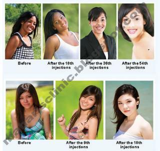 SKIN WHITENING TREATMENT IN MUMBAI WORRIED FOR BLACK SKIN- WANTED TO BE A CELEBRITY SKIN?  Have you ever longed for that celebrity skin? Do you have a dark complexion and uneven skin tone? Do you want to lighten your skin, improve your health and defy age?. We are direct distributors, where we are giving treatments to change your complete body complexion. We have  900mg, 1200mg, 1500mg, 3000mg, 5000mg FOR FAST & EFFECTIVE SKIN WHITENING. ULTIMATE Miracle Whitening skin within 30 days. ORIGINAL : PROVEN & TESTED!!! Change your skin colour today at easy way!!!! Whitening injection makes skin evenly whiter / fairer  The Glutathione are capable of making the skin whiter or fairer. Apparently this is a very popular treatment in Asia especially for many celebrities and models. These promise a whiter skin while removing all kinds of skin blemishes like scars and pigmentation marks.Like all invasive treatments, whitening bought to be taken with the recommendation of qualified dermatologists or professionals. Be one of our satisfied clients worldwide!Why do you think we are trusted worldwide since 1990.Now, a fairer and whiter, pimple and acne free complexion can be yours! Your beauty is in your hands, do not wait more, feel and see the difference in 2week! A smoother, clearer, flawless, younger, and whiter skin within, from inside-out.Glutathione skin whitening one of the best ways to lighten your skin without using any chemicals and other harmful ingredients. Whiten the skin faster and faster, Glutathione content of the highest in the Market. See the difference after the first WEEK. The results Within a week. A total WHITENING process of even tone with an INSTANT GLOW and SUPPLE you will experience. Take a new reborn of skin as moisturized without the use of lotion! Even out those blotches and take this new experience! Gluta Super Evolution white. Vit C and Pine Bark extract white power and white as possible within a week, whitening skin than any glutathione in the market metabolism and body chemical functioning) this is where you will notice that your skin is shinier and healthier than before. After this process, you will notice that your complexion is totally changed. Particularly Required for,  People with dark Black& Brown skin What can GLUTATHIONE do for you? Whitens the skin Prevent/remove pimples and pimple marks Dark spot remover Anti-aging and anti-wrinkles Nourishes skin Makes your skin smooth, fresh and radiant Rapid skinwhiteningby reducing the melanin formation.Gluthathione is safe for everyone of whatever age. CONTACT US Mob: 09840492065 / 08015560555 / 07845080288  Watch this :http://www.youtube.com/watch?v=49172Dg2pWs& feature=play er_detailpage#t=529s  Email: madhucreativegroups@gmail.com Mobile number: 8015560555  http://www.tradeindia.com/selloffer/5079612/Skin-Whitening-Injections-Tatiomax.html http://www.tradeindia.com/selloffer/4826787/GSH-Ultim a-1500MG-Injections.html  skin whitening injection in chennai: skin whitening injection in mumbai: skin whitening injection in delhi: skin whitening injection in hyderabad: skin whitening injection in Andheri west: skin whitening injection in Andheri east: skin whitening injection in kerala: skin whitening injection in Ernakulam: skin whitening injection in Kozhikode: skin whitening injection in Thiruvendrum: skin whitening injection in Madurai: skin whitening injection in salem: skin whitening injection in vellore: skin whitening injection in coimbatore: skin whitening injection in karaikudi: skin whitening injection in chennai anna nagar: skin whitening injection in Banglore: skin whitening injection in vizag: skin whitening injection in vijayawada: skin whitening injection in kolkata: skin whitening injection in chennai adyar: skin whitening injection in chennai nungambakkam: skin whitening injection in chennai Royapuram
