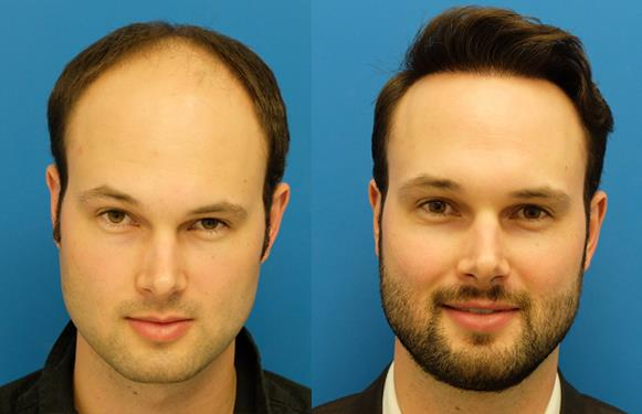 Hair fixing and hair regrowth hair transplantation