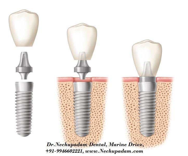 Another way to Replace a Missing Tooth is through Implants. They're anchored to your jaw. A titanium post is surgically inserted into the jaw, an extension called an abutment is attached to the post, and a crown tops things off. the process takes weeks because bone has to regrow around the post.  To fix an Implant Don't hesitate to block an appointment.