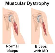 Muscular Dystrophy is an