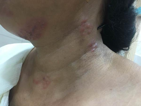 HERPES ZOSTER IN A 50 year old lady--   A viral infection in the form of  Painful grouped blisters on the face and neck were treated with antiviral drugs .  Best  skin specialist in Chandigarh, Panchkula & Mohali :  Dr Ashima Goel Ex Sr. Resident, PGIMER PARISA SKIN, COSMETIC AND LASER CENTRE, CHANDIGARH-  SCO 76, FIRST FLOOR, NEAR GOPAL SWEETS, SECTOR 15  M 9780981403