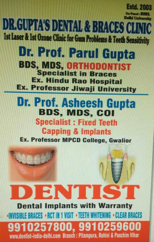 Top 10 Dentist in Delhi   Dental Clinics in Delhi   Braces Treatment Clinic in West Delhi - Dr Gupta's Dental and Braces Clinic   Looking for Best and Specialist Dentist near by your Location ???? Dr Prof Asheesh Gupta and Dr Prof Parul Gupta are the Leading and Best Certified Implantologist and Orthodontist Doctors in North Delhi, having a Experience of more then 14 yrs for treating the patients. Specialist Doctors of each Treatment - Painless RCT, Single Visit RCT, Wisdom Tooth Extraction, Teeth Whitening , Cosmetic Dentistry etc at Affordable Consultantion Fees with guaranteed treatment results.For Booking or Consultantion call today at +919910257800  Best Dentist in North Delhi   Cosmetic Dentistry Treatment Clinic in North Delhi   Dental Clinic in West Delhi   Root Canal Treatment Clinic in West Delhi   Painless RCT Treatment Clinic in West Delhi   Dental Implants Clinic in North Delhi   Implantologist in West Delhi   Orthodontics in North Delhi   Braces Treatment Clinic in West Delhi