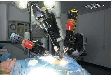 Multiple Choice Question for NEET-PG 2018  The name of this Robotic system? 1.Ironic 2.Da vinci  3.Mecintoc  4.Resperate