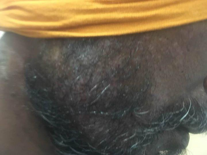 ERMATITIS : to Godrej hair dye. Dr Ashima GoelFormer Sr. Resident, PGIMER, CHANDIGARHPARISA SKIN, COSMETIC AND LASER CENTRE, CHANDIGARH-  SCO 76, FIRST FLOOR, NEAR GOPAL SWEETS, SECTOR 15 DTIMINGS : 10:30 am – 1:30 pm, 5:30 – 7:30 pm ( Monday to Saturday)                                 M-09417169888, 9780981403 email signature: https://goo.gl/maps/61t6kaCEUmrVisit us at : www.parisadermatology.com For more info visit us at http://bestdermatologistinchandigarh.com/bizFloat/5a20141e95b7620a20925ae9/IRRITANT-CONTACT-DERMATITIS-to-Godrej-hair-dye-Dr-Ashima-Goel-Former-Sr-Resident-PGIMER-CHANDIGARH-PARISA-SKIN-COSMETIC-AND-LASER-CENTRE-CHANDIGARH-SCO-76-FIRST-FLOOR-NEAR-GOPAL-SWEETS-SECTOR-15-
