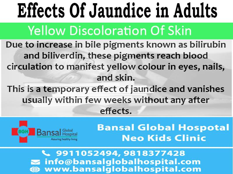 Effects Of Jaundice in Adults  In India, we don't need to familiarize you with Jaundice as it is pretty much common in most regions. The main cause of Jaundice is consumption of contaminated food and other factors that affect your liver. It is usually treated with adequate rest and proper dietary intake.  Bansal Global Hospital Read More : https://bansalglobalhospital.com/effects-of-jaundice-in-adults/
