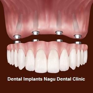 Tooth Implant jp nagar, Teeth Whitening jp nagar, dentist near jp nagar, Dental Surgeon jp nagar, available at Nagu Dental clinic jp nagar Bangalore. For more information http://www.nagudental.com/