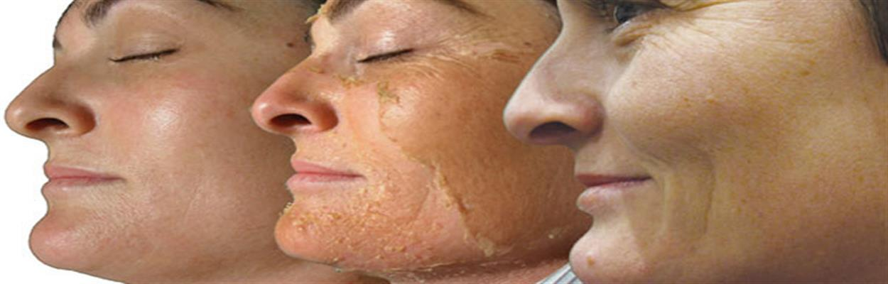 Skin Whitening Treatment for Girls in Vadapalani :