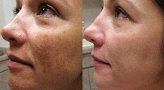 Chemical Peeling Treatment in Chennai :