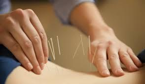 Acupuncture Treatment In Nashik
