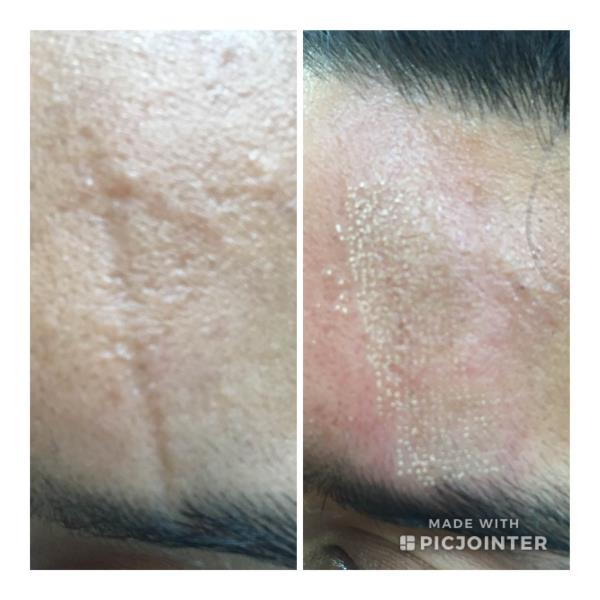 TREATMENT FOR THE SURGICAL SCAR ON FOREHEAD:#fractional #fractionalCO2laser #surgicalscar #scar #forehead #parisa #laser #cosmetic #chandigarh #skincare #dermatologist #BestDermatologistInChandigarh #bestdermatologistchandigarh #dermalfillers #juvederm #dermalfiller #botox #skinspecialist #cheekfillers #juvedermultra #juvedermvolumaPARISA SKIN, COSMETIC AND LASER CENTRE, CHANDIGARH- SCO 76, FIRST FLOOR, NEAR GOPAL SWEETS, SECTOR 15 DTIMINGS: 10:30 AM– 1:30 PM; 5:30PM– 7:30PM (Monday to Saturday)Mob- 09417169888; 9780981403