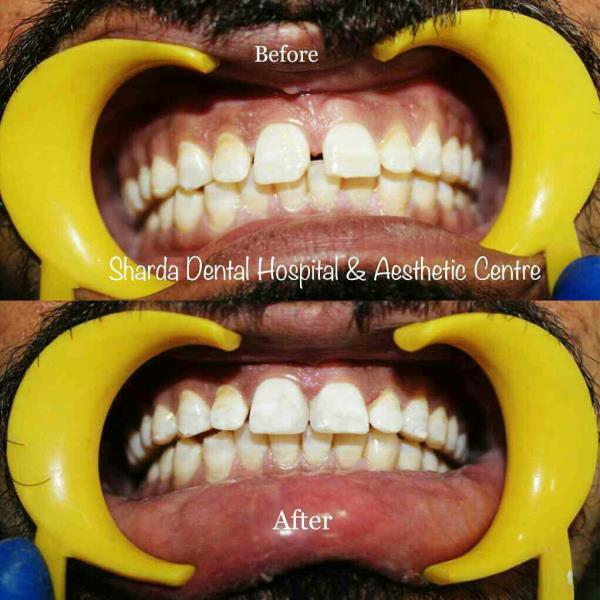Truly world class dental care sharda dental hospital aestheic gap between the teeth takes confidence away from your smile get yourself a confident and solutioingenieria