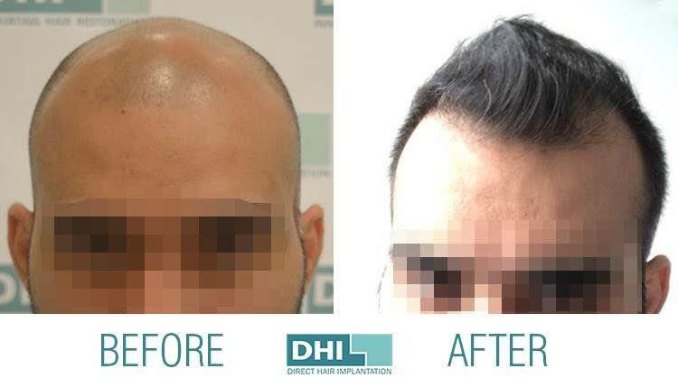 Looking for FUE Hair Transplant in Kochi ? Go for more advanced DHI Hair Transplant.  Baldness will never ever worry you ! DHI Hair Transplant Clinics in Kerala, will help to define the  new you.