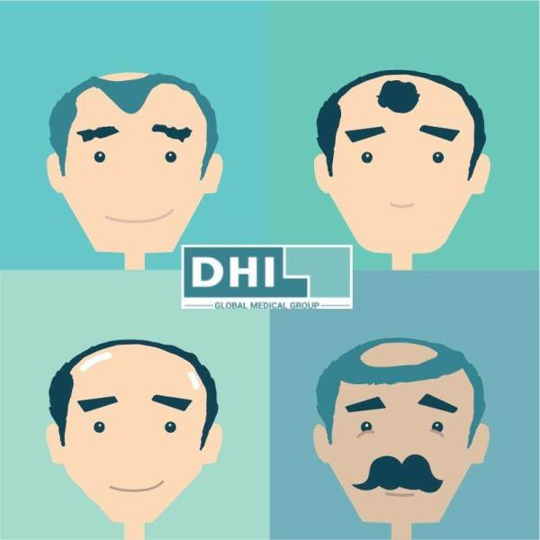 Hair Loss might appear with different patterns and because of several different causes.   Patient Education is an integral part of DHI Hair Loss Treatments. Not every one requires a Hair Transplant.  Consult DHI  Hair Loss Treatment Clinics in Cochin and DHI Hair Loss Treatment Clinics in Calicut to avail DHI Hair Loss Treatment in Kerala.