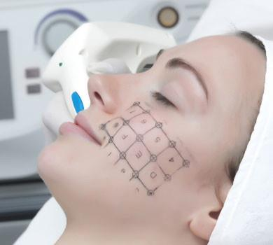 Thermage Treatment f