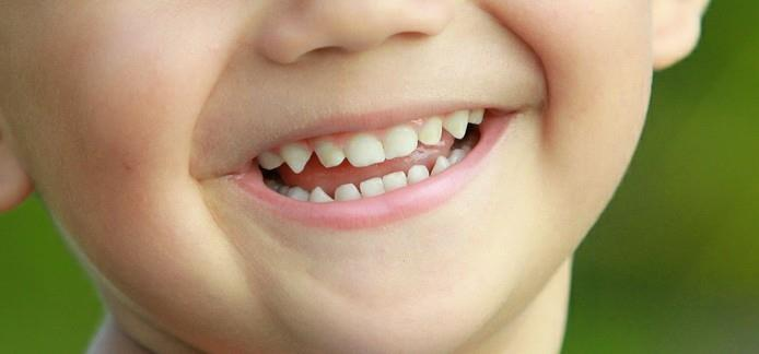 Is your kid having tooth