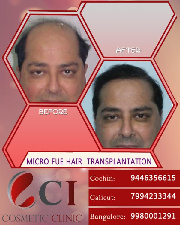 When hairfall and baldness starts bothering you, then Cutis International -C I Cosmetic Clinic is your prime choice for hair related solutions. The best hair transplant specialists in India. We Do Provide all kind of Hair transplant treatment , MICRO-FUE, FUR, FUT , DHI, MEGA SESSION