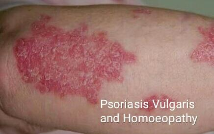 White scales (silvery white) with redness of skin are common features of Psoriasis. Pain and itching only occurs in lesions (not in normal skin elsewhere). Most Common feature is pin point bleeding spots after removing scales. Sometimes lesions appear after minor skin injury. Safe and deep acting Homeopathic Medicines are very effective in treating the psoriasis. Commonly used Homeopathic Medicines are Psorinum, Sulphur, Kali Ars, Hydrocotyle, Berberis Aqui, Kali Sulph, Graphitis and Arsenic Alb.