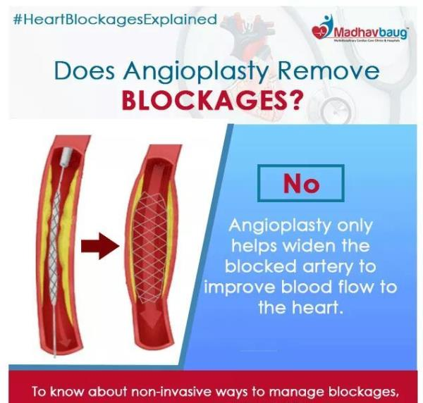 DOSE ANGIOPLASTY REMOVE BLOCKAGES  ?