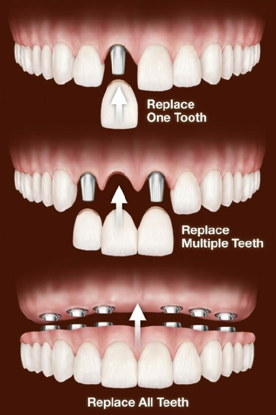 Quick teeth replacement s