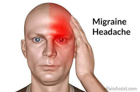 Migraine is a wide