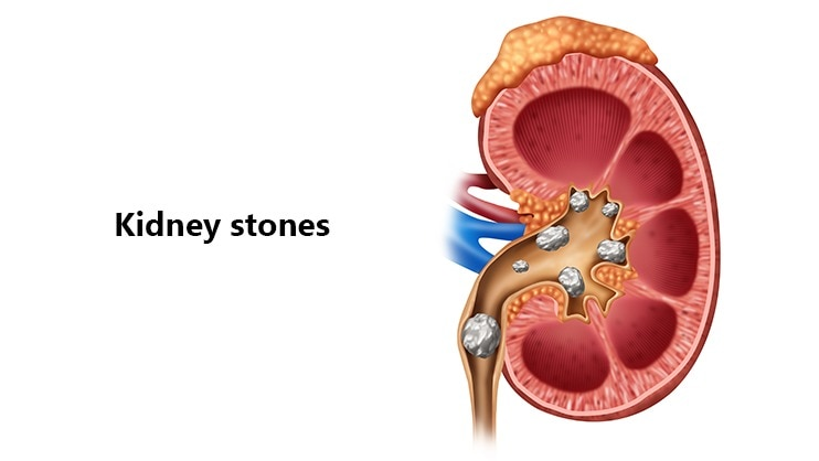 Kidney stones or Renal calculi