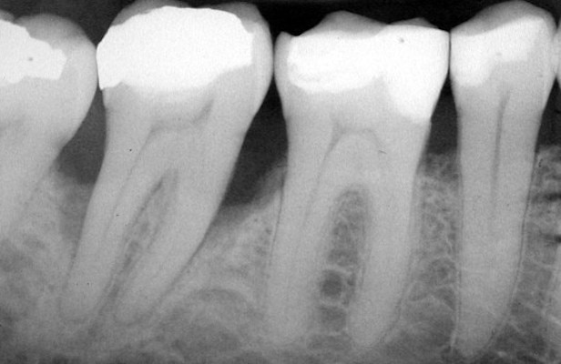 X-RAY  Dental X-rays are a use