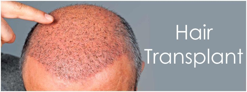 Hair Transplantation In Indore