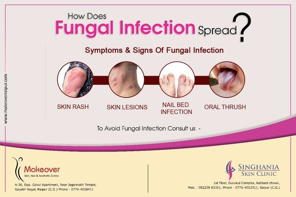 Fungal infection, caused by harmful fung