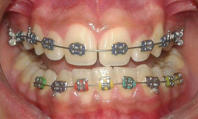 Dental Braces Treatm