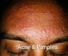 Acne and Pimples are absolutel