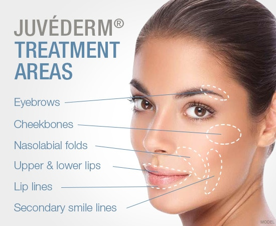 Juvederm and Voluma  Similar t