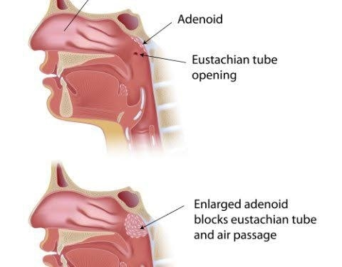 Adenoid is normal and natural