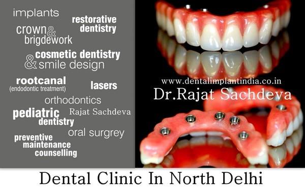 Best Dental Clinic in Ashok Vi