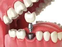 best dental implant centre  we