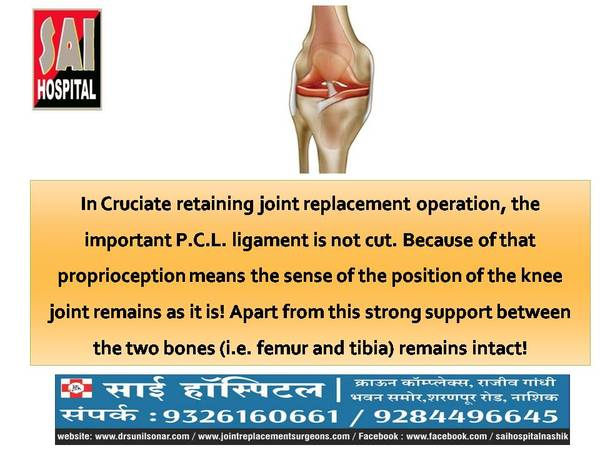 In Cruciate retaining joint re